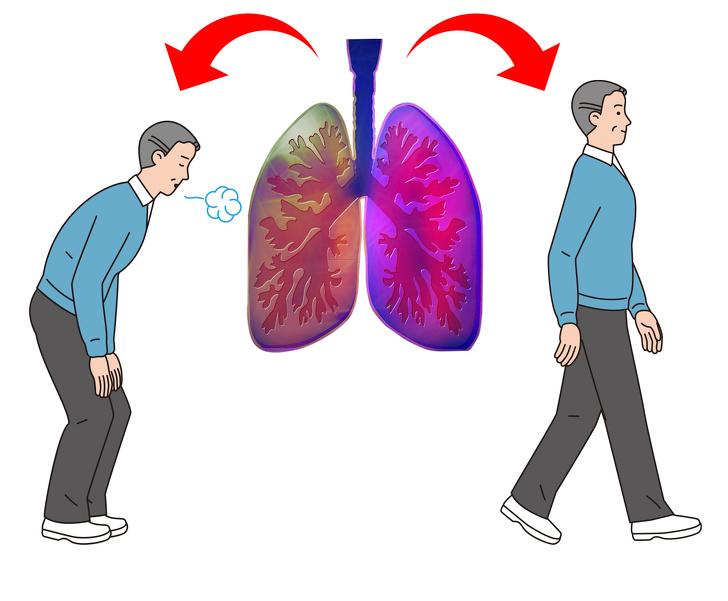 5 علامت مهم که نشان میدهد ریههای شما در خطر است