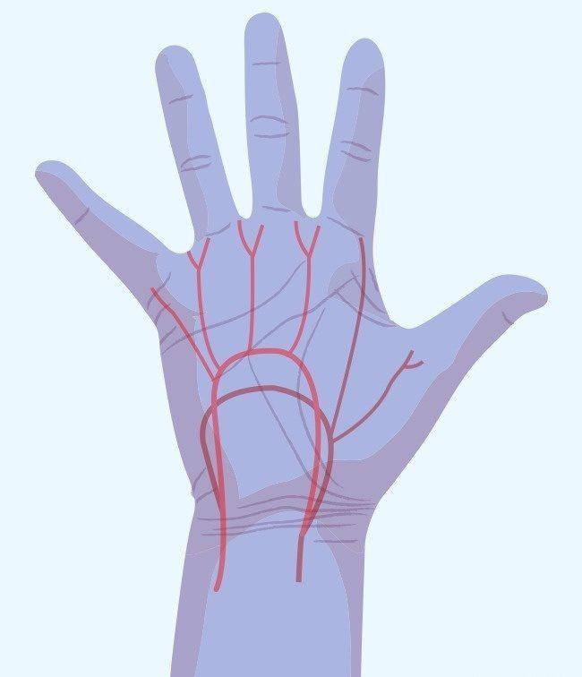 سوزن سوزن شدن دستها؛ نشانه 7 تهدید مهم برای سلامت !